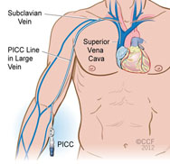 Picc Line Insertion – Epicc Vascular